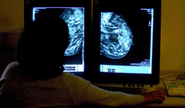 Record delays in cancer treatment a 'scandal'