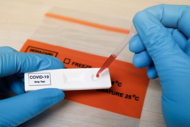 Rapid covid-19 strip test. Getty Images.