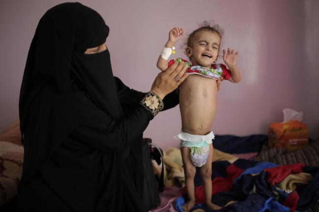 Britain is slashing aid to Yemen despite a famine there