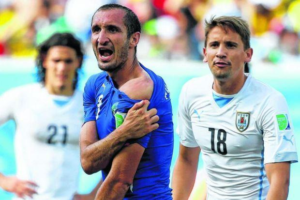 Giorgio Chiellini bares his shoulder after claiming that he had been bitten by Uruguay striker Luis Suarez. Picture: Tony Gentile/ Reuters