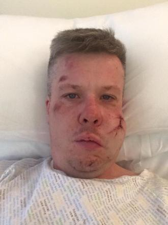 Shocking image emerges of man who claims he was attacked in Glasgow as Celtic faced Ajax