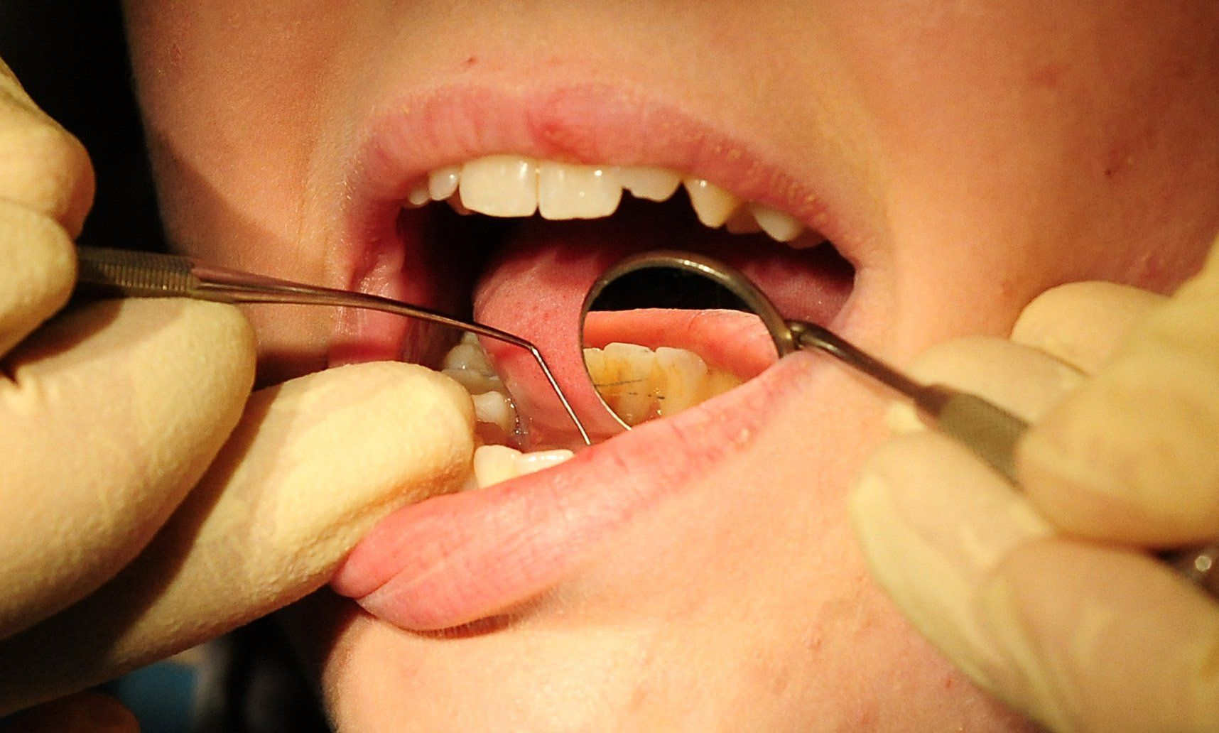 Snacks fuel tooth decay - even if you brush, says study