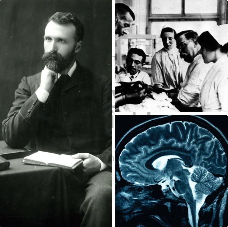 William Macewen: meet the pioneering Glasgow surgeon behind world's first brain tumour op